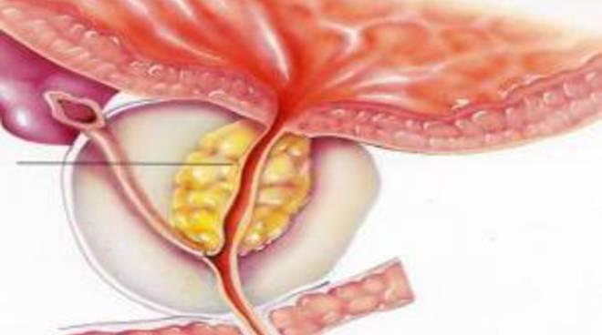 la nuova terapia di carini per la prostata