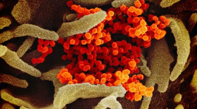 coronavirus foto a colori virus cinese